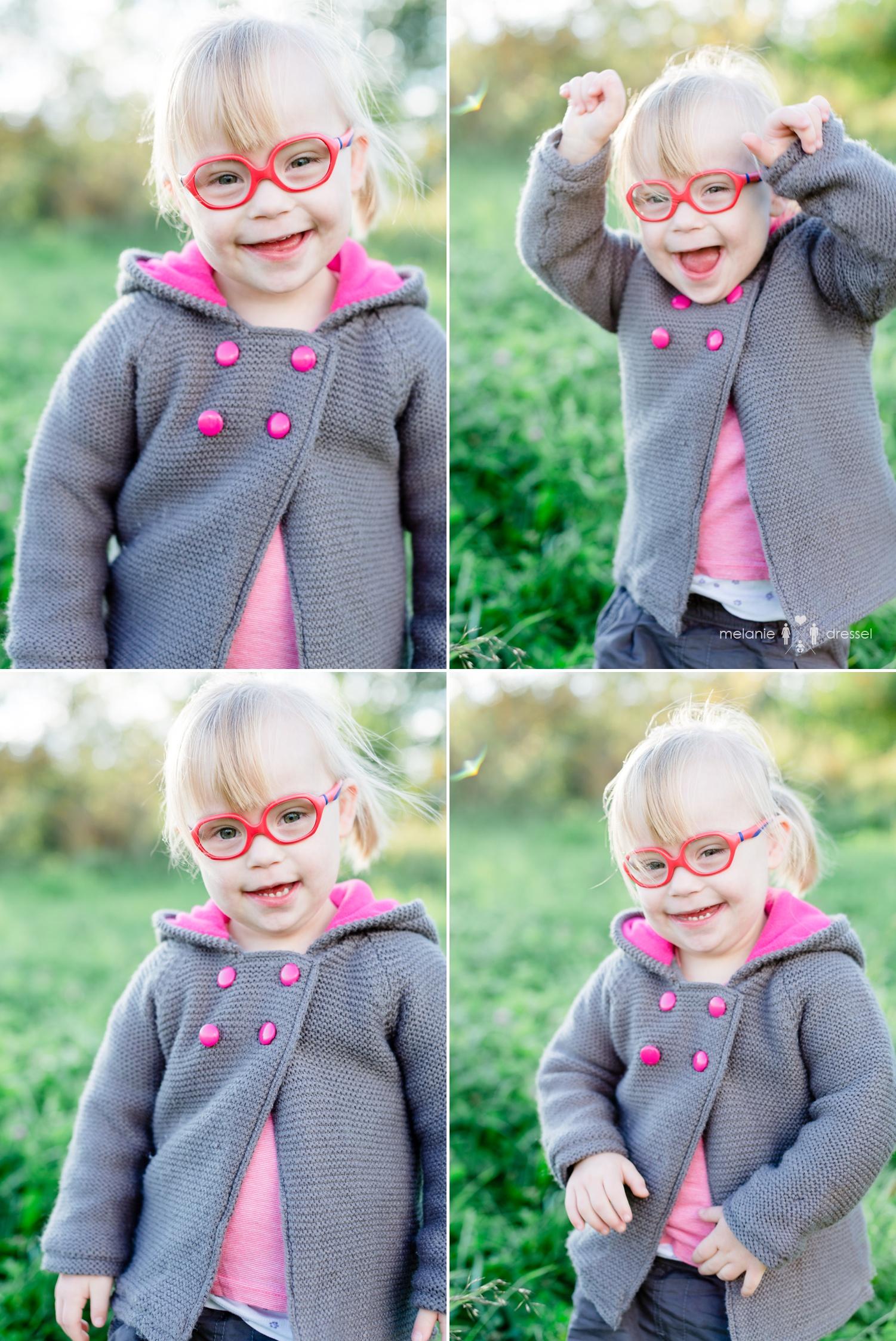 Fotografie Kind Down Syndrom